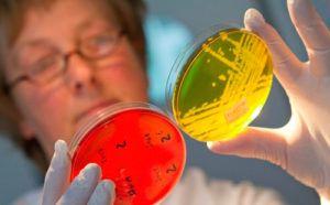 Исследование кала на паразиты