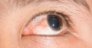 Хламидийный эписклерит