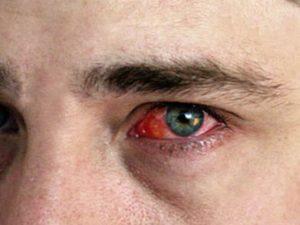 Хламидийный конъюктивит – вирусное зоонозное заболевание