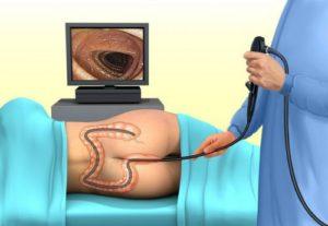 эндоскопия кишечника