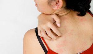 аллергические высыпания