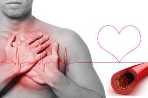 Усиление сердцебиения