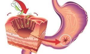 язва двенадцатиперстной кишки или желудка