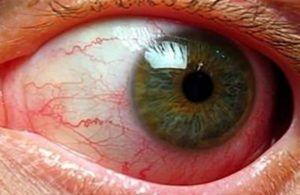 Поражение глаз глистами