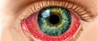 Хламидиоз глаз
