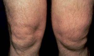 Отек квинке перемежающийся отек суставов хрустят все суставы у подростка