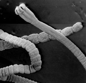 Бычий цепень закрепляется на стенках тонкого кишечника с помощью присосок