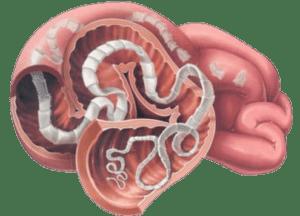 Болезнетворные воздействия паразита зависит от его местоположения в организме