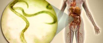 Гименолепидоз - карликовый цепень