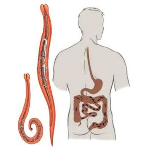 анизакидоз в области желудка