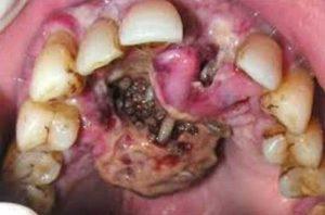 личинки в деснах