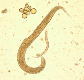 стронгилоидоз